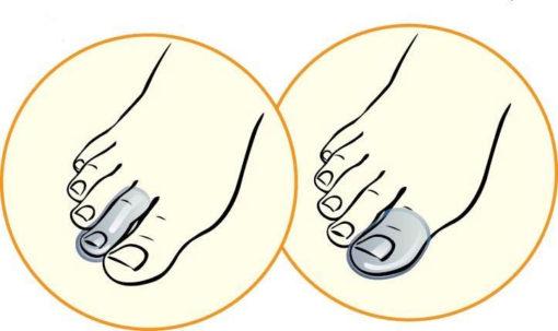 Протектор для пальцев стопы Арт. 04C