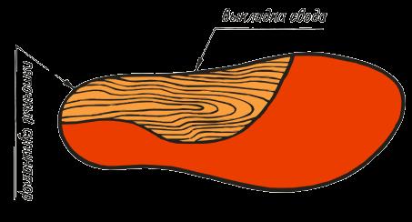 ВП-2. Модели с супинаторным вкладышем для пятки и продольных сводов. Используются для коррекции вальгусной деформации ступней и пяточной шпоры.
