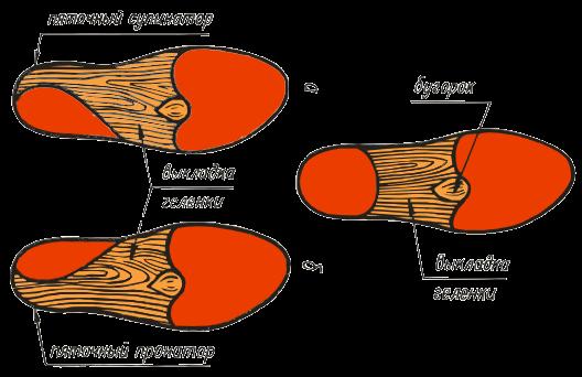 ВП-6. Применяются для предотвращения уплощения продольного свода. Супинаторы поддерживают стопу в правильном положении, для пятки предусмотрен амортизатор.